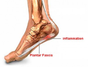 what can you do for plantar fasciitis