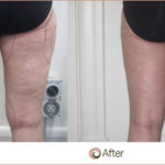 Cellulite 101: What is it and how do you get rid of it?